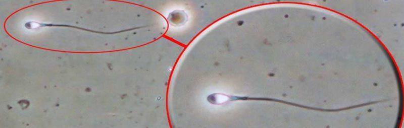 Lo spermiogramma, collaborazione tra clinici e biologi